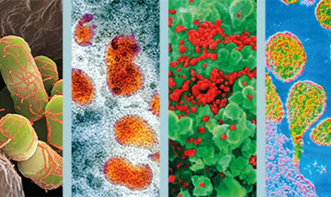 Infectious disease surveillance summary, 2014 data