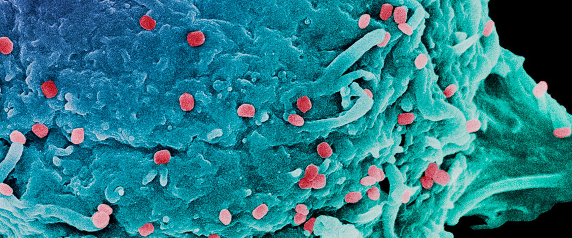 Vaccinia virus particles, SEM. © Science Photo Library