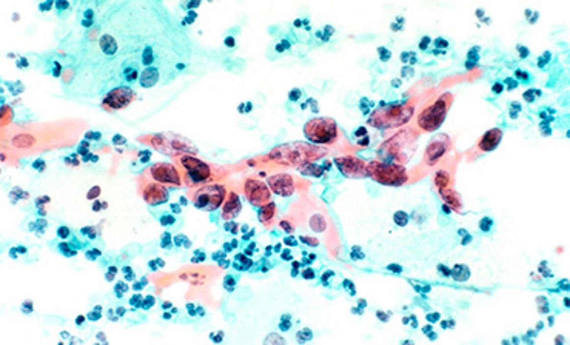 cum să bei pastile antihelmintice tratamentul viermilor