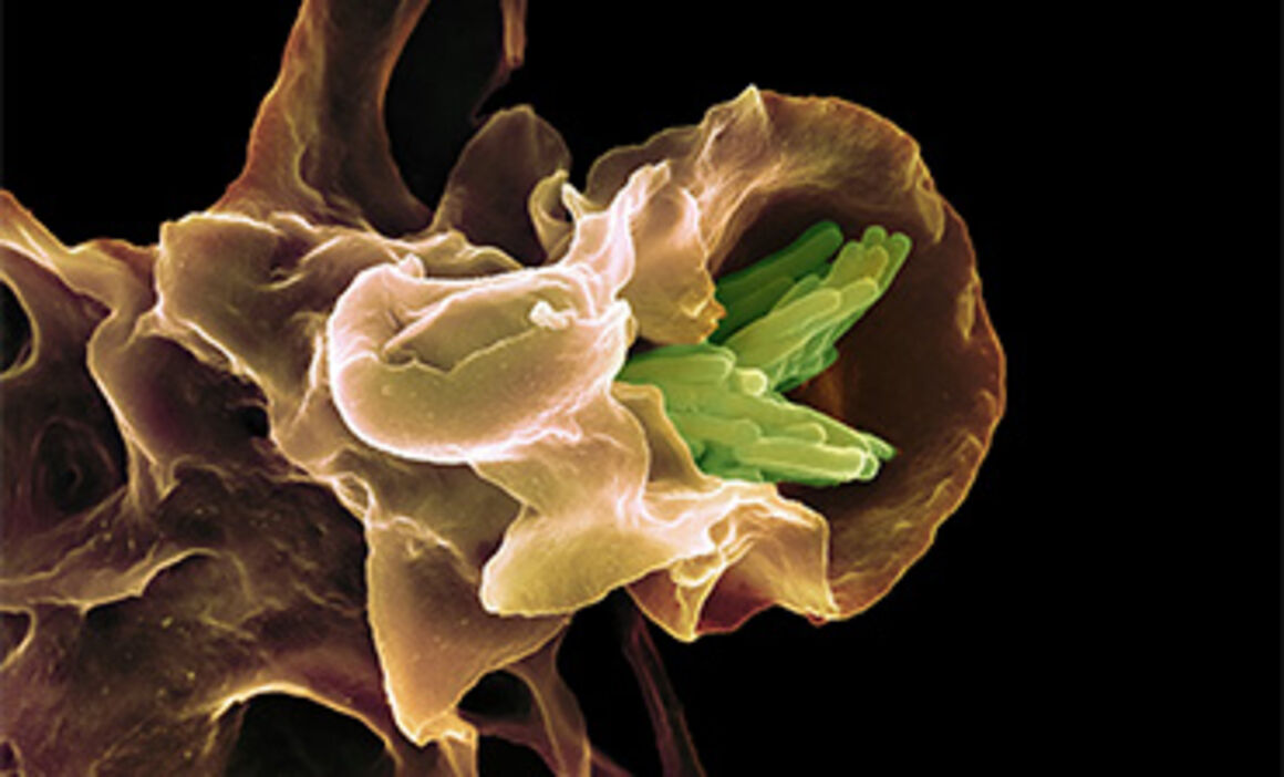 Macrophage engulfing TB bacteria, SEM. © Science Photo Library